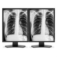 medical displays nec mdg3 bndn1