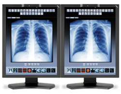 medical displays nec mdc3 bndn1